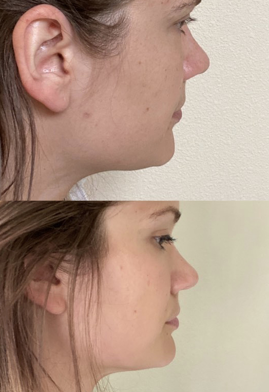 modere biocell life modere TRIM one month results neck results does liquid collagen work